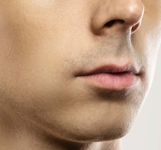 trasplante-barba-1